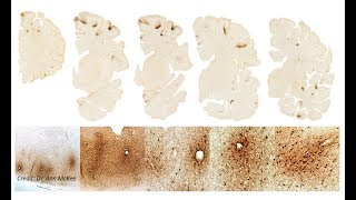 VA-BU-CLF Brain Bank Researchers find Stage III CTE in Aaron Hernandez