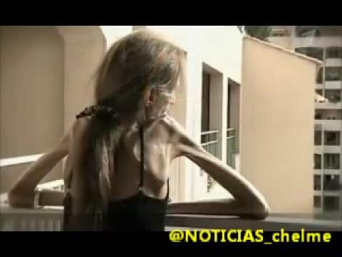 IMPACTANTE - Ella es Valeria, la mujer más anorexica del mundo (14/04/13)