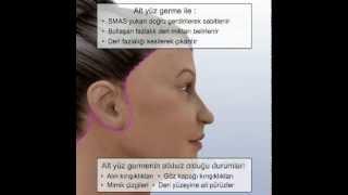 Klasik Yüz Germe Ameliyatı Ve Boyun Kaslarını Sıkılaştırma, Dr. Nazmi Bayçın