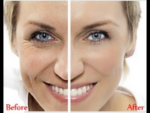 Anti Wrinkle Reviews & Tips   Anti Wrinkle Treatments