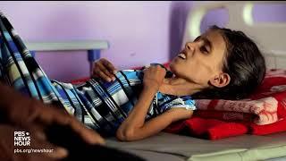 Yemen's spiraling hunger crisis is a man-made disaster