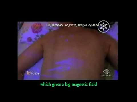 UFO ABDUCTION - Italian Woman Impregnated by Aliens 100% Real Footage