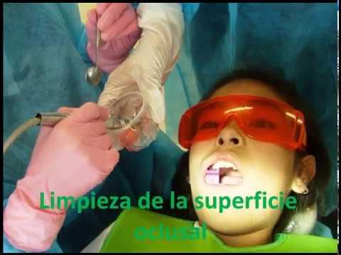 Aplicación de selladores en fosetas y fisuras (ENES-UNAM)