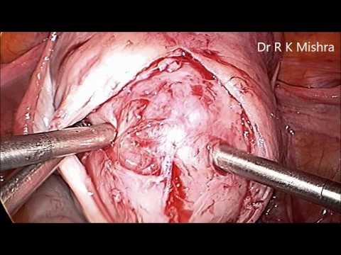 Laparoscopic Uterine Fibroid Surgery