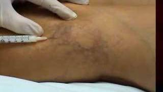 Foam sclerotherapy to remove leg veins. www.drzachary.net