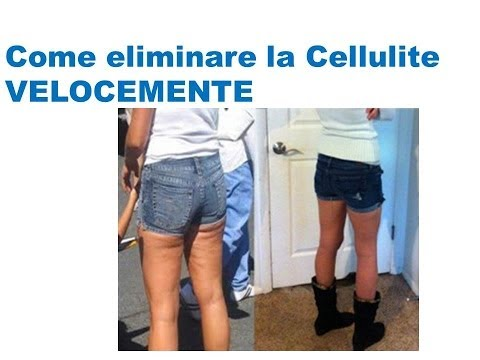How to get rid of cellulite naturally on thighs; Come eliminare la cellulite velocemente