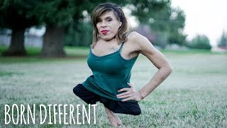 Trans Woman Born With Half A Body Finds Love | BORN DIFFERENT