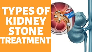 Types Of Kidney Stones Nowadays - Ways To Heal Your Kidney Damage At Home