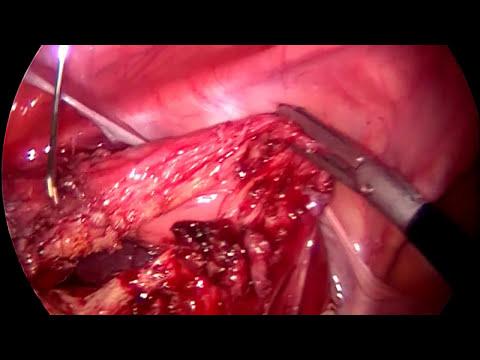 Pasos para realizar una histerectomia por laparoscopia.