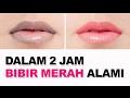 Cara cepat Memerahkan Bibir Hitam dalam 2 jam MP3