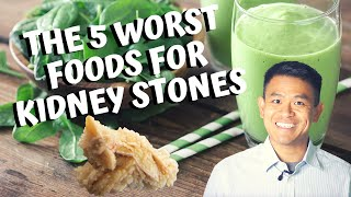 The 5 Worst Foods for Calcium Oxalate Kidney Stones | How to Prevent Getting Kidney Stones (2020)