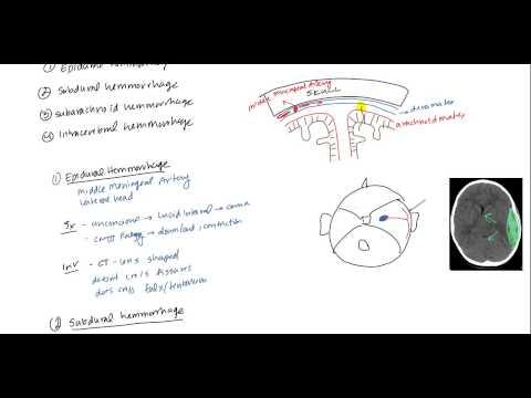 Epidural Hematoma, Subdural hematoma, Subarachnoid hematoma, Intracerebral hemorrhage thumbnail