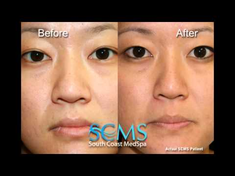 Laser acne scar resurfacing - before and after - August 2013