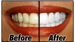 How to make your teeth white at home naturally - use this method only once per week
