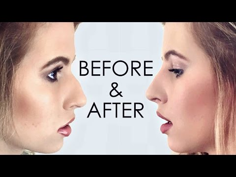 NON-SURGICAL NOSE JOB RESULTS! I Hannah Leigh