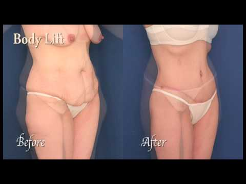 Body Lift - Post-Bariatric Cosmetic Surgery in Baltimore, Maryland