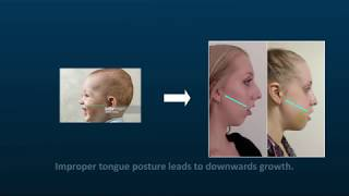 The Core Series Part 4-  The Impact Of Mouth Breathing And Tongue Posture On Facial Growth