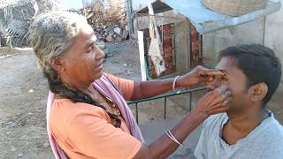 """Amazing technique to remove """"Dust and Stone from Eye""""  from Tamil nadu"""