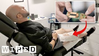 Biohacker Explains Why He Turned His Leg Into a Hotspot | WIRED