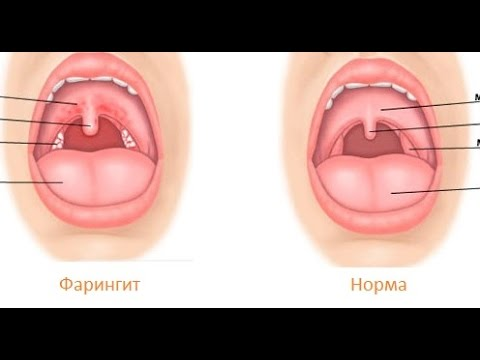 ostriy-rinofaringit-traheit