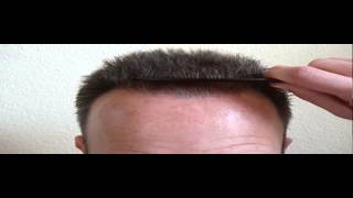 Hair Transplant Brussels - Prohairclinic Belgium