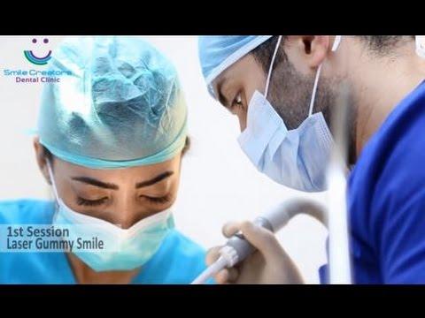 HOLLYWOOD SMILE - Laser Gummy Smile + Veneers - Dr Elie GEMAA - Smile Creators