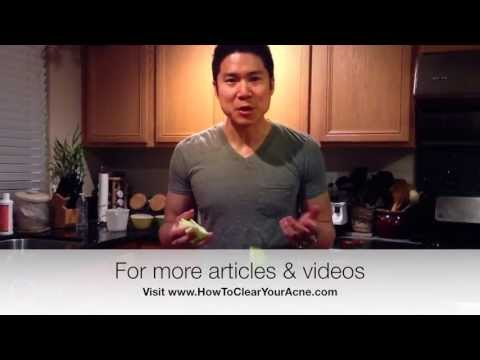Acne Tricks - How To Do Fast Apple Peeling