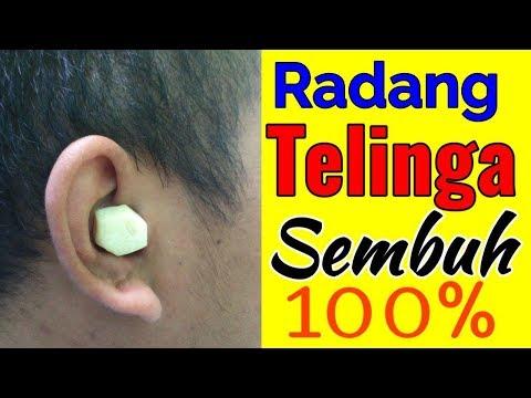 Youtube obat nyeri infeksi telinga