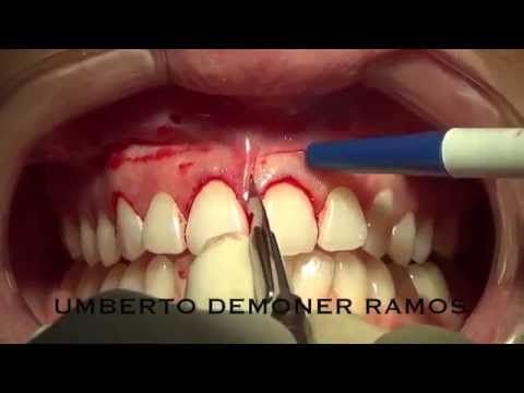 lip repositioning for gummy smile correction