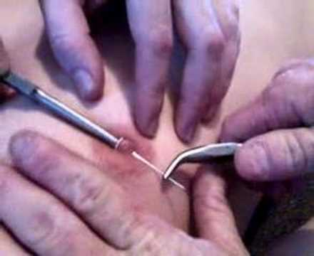 Nipple Piercing Video 4