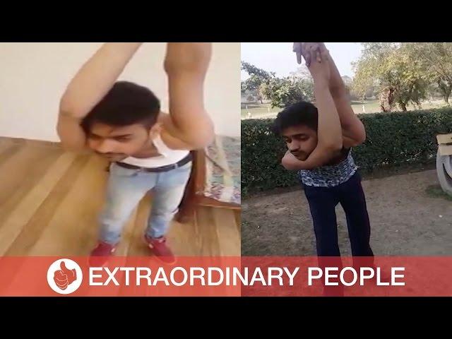 Pakistani Boy Dislocates Own Shoulders
