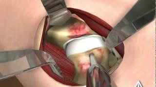 Femoral Acetabular Impingement - 3D Medical Animation