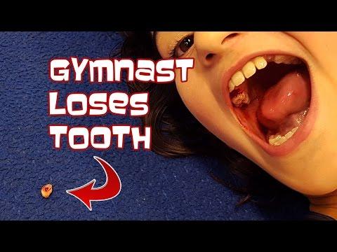 Gymnast Loses Tooth | Gymnastics With Bethany G