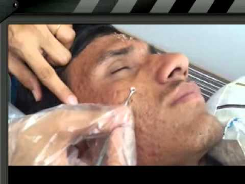 ACNE VULGARIS ( Dr Bhutada cosmetology clinic)