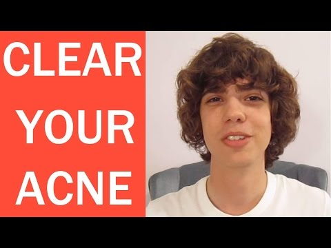 How to Get Rid of Acne Overnight FAST!
