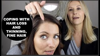 COPING WITH HAIR LOSS AND THINNING HAIR - NADINE BAGGOTT
