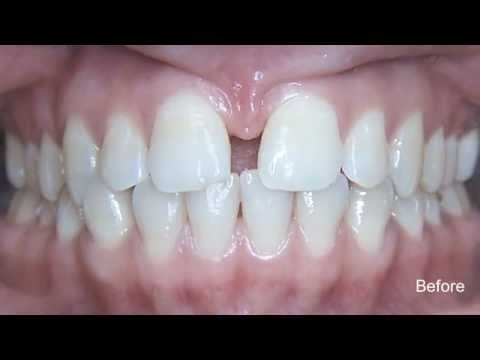 Invisalign Before and After Pictures - Invisalign in Toronto with MCO Orthodontics