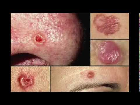 Some Basal Cell Skin Cancers Aggressive