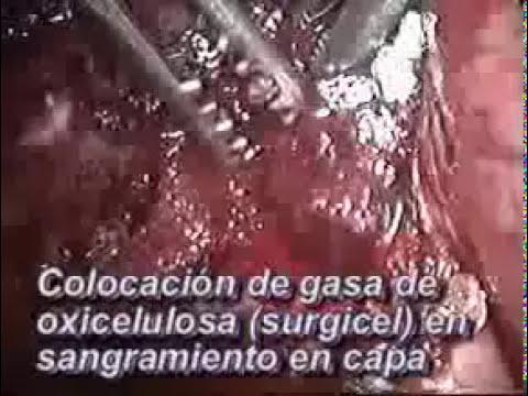 Cirugía de Vesícula Biliar con Técnica Laparoscopia
