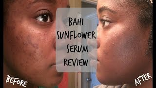 Bahi Sunflower Serum Review! | SKIN JOURNEY