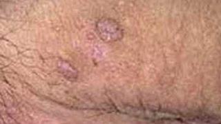 Vph y verrugas en los genitales, sintomas, tratamiento, contagio e imágenes