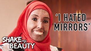 My Hardening Skin Doesn't Stop Me Being Beautiful | SHAKE MY BEAUTY