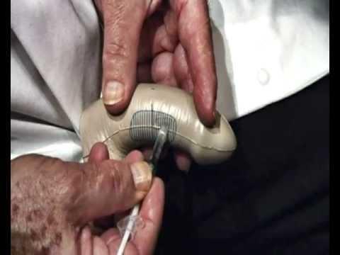 Имплантация шаров в член порно видео