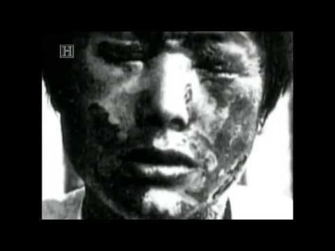 Perang Jepun (13/20) [1/3] - Eksperimen Senjata Biologi Askar Jepun