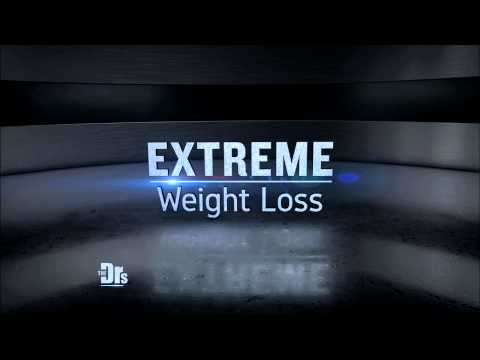 Friday 08/14: Extreme Weight Loss Surprise; Anti-Aging Chocolate?; Diet-Friendly Desserts - Promo