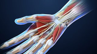 Carpal Tunnel Syndrome | Nucleus Health