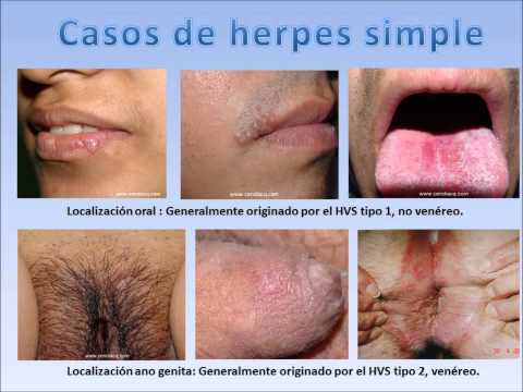 HERPES SIMPLE, todo lo que usted debe saber.