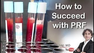 HOW TO EXCEED WITH PRF FACE INJECTIONS-Dr Rajani