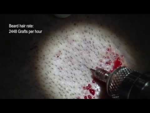 Automated fue hair transplant extraction machines - devices: PCID - Beard hair extraction