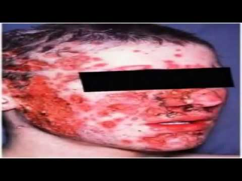 What Is The Best Acne Treatment? - Best Acne Treatment Revealed! Treatment Acne